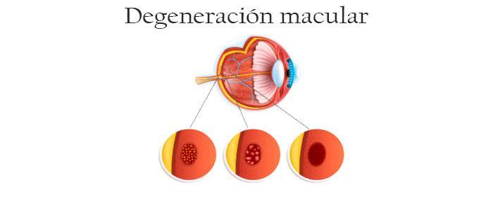 Usos de los beta carotenos para la degeneración macular