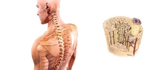 Cómo aumentar la densidad ósea con daidzeína